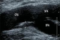 下肢動脈エコー