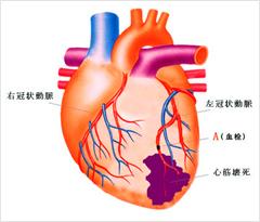 図5.心筋梗塞(ホームページ「糖尿病講座『流れて良くなる』」より)