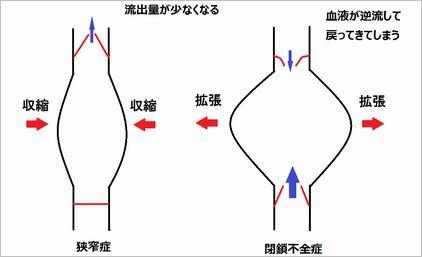 図3.狭窄症と閉鎖不全症